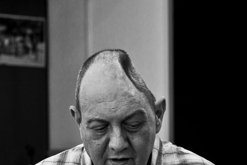 """""""Daño cerebral: historia de una epidemia silenciosa""""/ © ROBER AMADO PHOTOGRAPHY"""