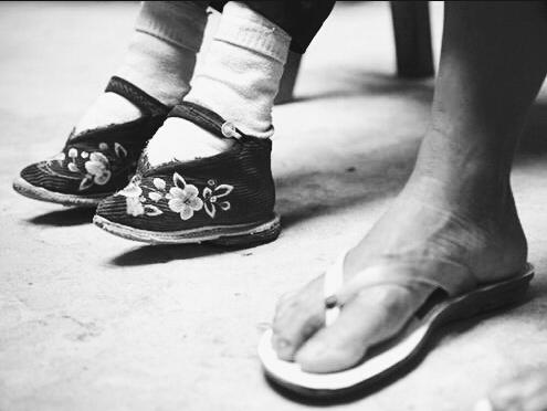 Coa vendaxe, os pés acadaban a metade do seu tamaño normal. Foto: marcianosmx.com