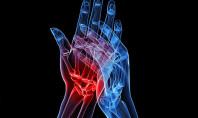 Artritis reumatoide: cuando tu propio organismo es el enemigo